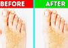 HOW TO GET RID OF BUNIONS PAIN ON TOES NATURALLY AT HOME.