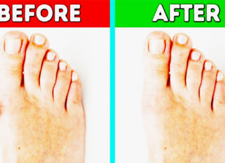 How To Get Rid Of Bunions Naturally