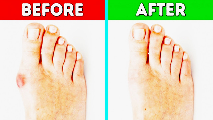 How To Get Rid Of Bunions On Pinky Toe