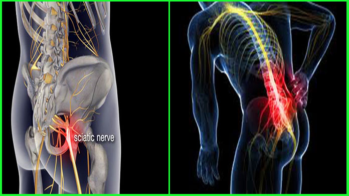 Treatment Of Sciatica - Home Remedies Lower Back Pain