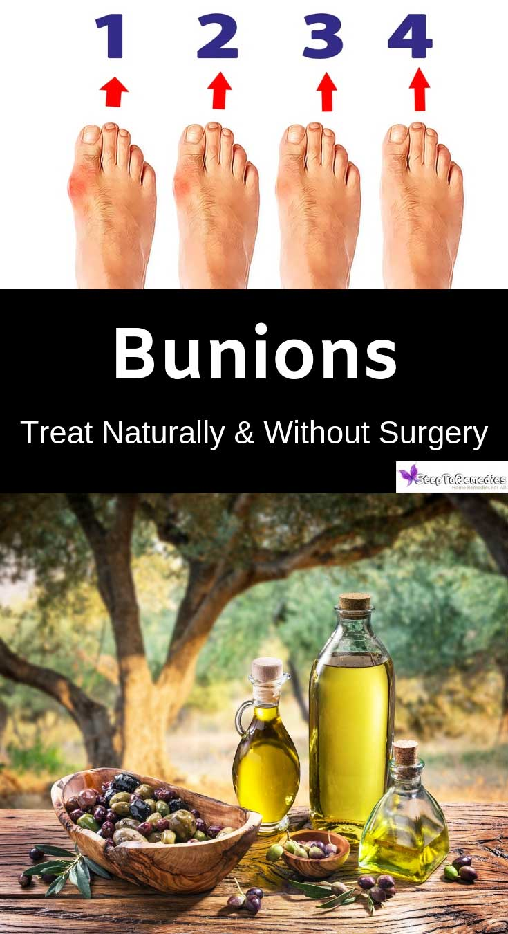 Home Remedies For Bunions - essential oils dissolve bunions - how to get rid of bunions naturally at home