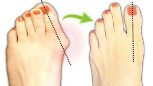 how to get rid of bunion without surgery