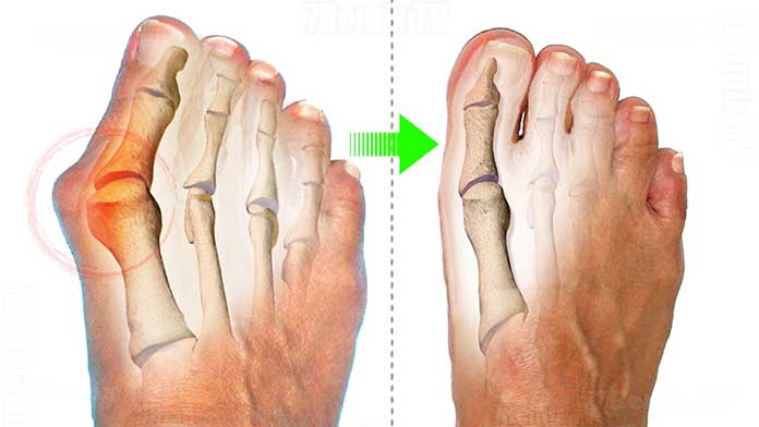 pinky toe bunion corrector - how to get rid of bunions naturally at home