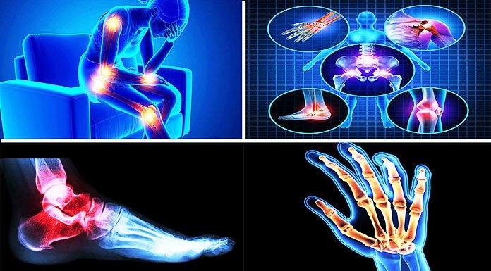 arthritis pain home remedies