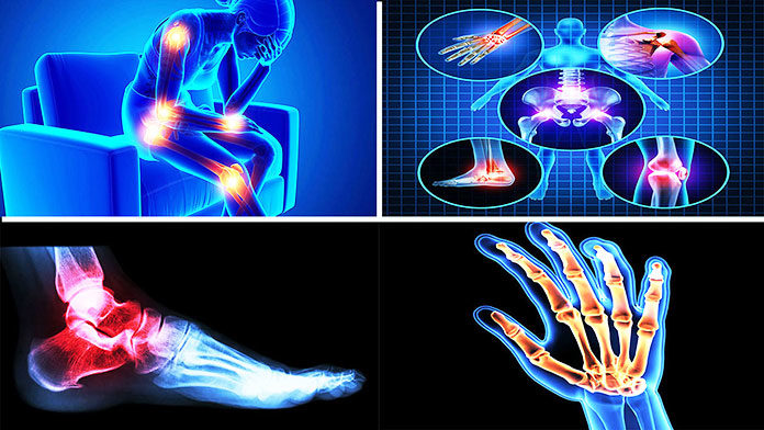best medicine for arthritis pain