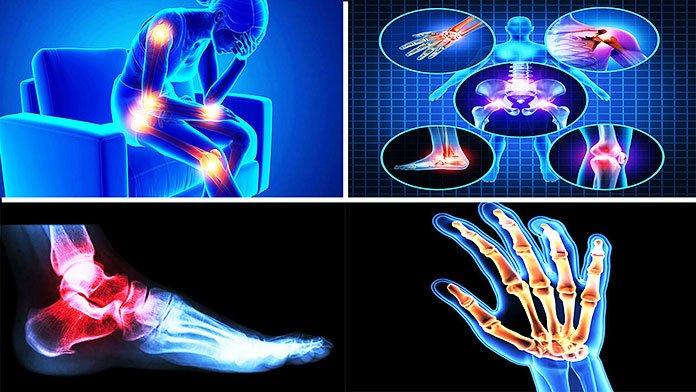 best medicine for arthritis pain