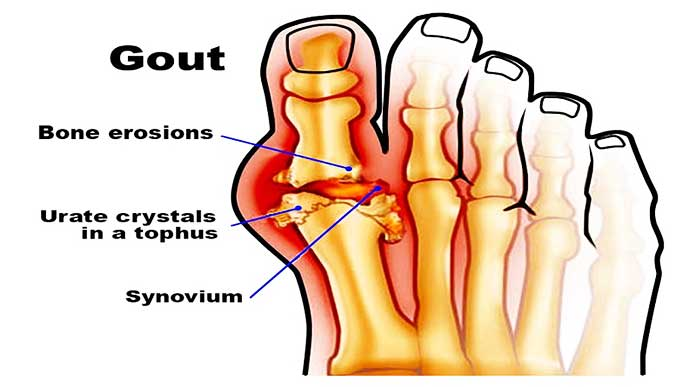 Home Remedies For Gout Pain In Foot