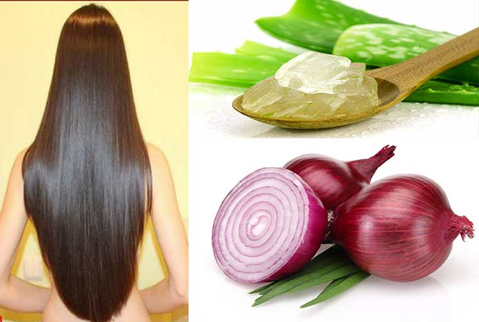 onion & aloe-How To Use Aloe Vera For Hair Growth