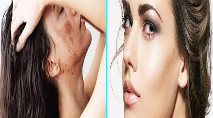 get rid of acne scars overnight
