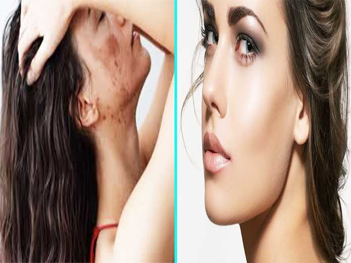 How To Get Rid Of Acne Scars Overnight (6 BEST REMEDIES