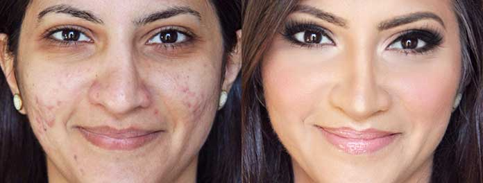 how many microdermabrasion treatments for acne scars