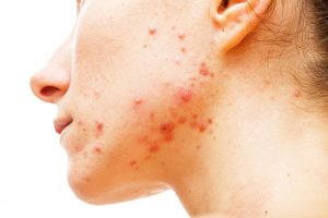 What Is Acne? - What Is The Best Acne Treatment