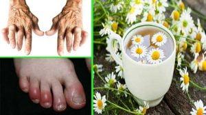 Inflammation - Acute, Chronic, Latent - Camomile Tea