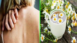 Skin Diseases - 13 Amazing Benefits Of Chamomile Tea For Health
