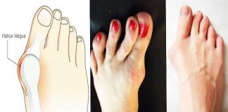 10 Natural Tips For Hallux Valgus Treatment