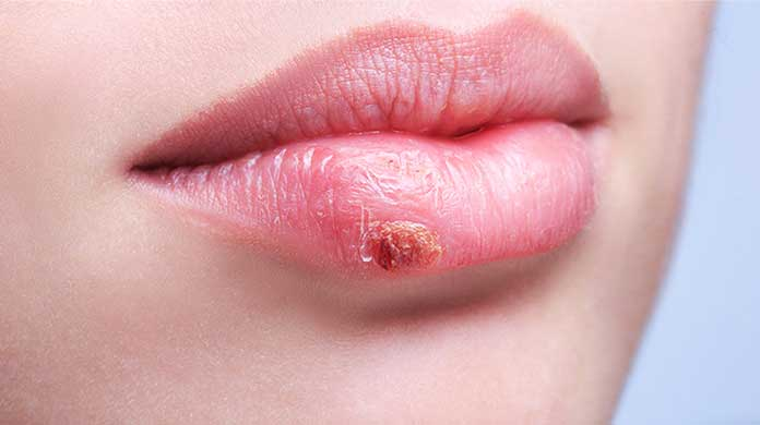 how to get rid of cold sores on lips overnight