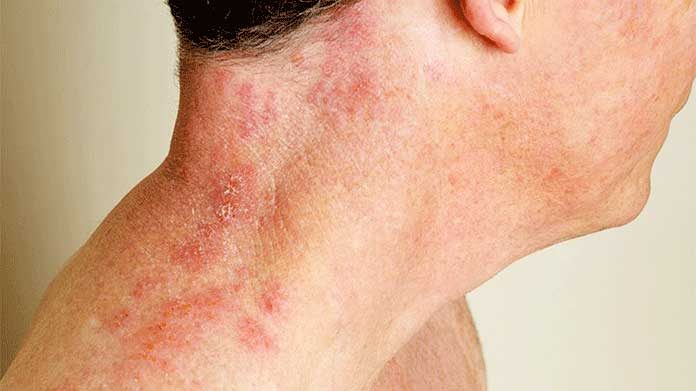 What Are The Symptoms Of Internal Shingles Without Rash