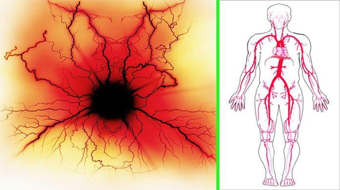arteriosclerosis treatment