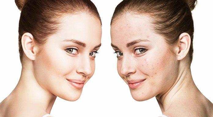 Clogged Pores