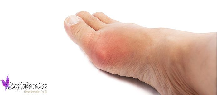 Gout Treatment: How to Get rid of Gout Pain Attack