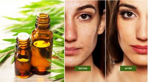 Tea Tree Face Mask For Acne - 11 Best Effective Face Mask For Oily Skin