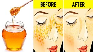 Honey For Acne Scars