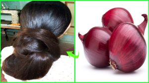 Onion Mask For Hair Loss - 15 DIY Masks How To Use Onion Juice For Hair Growth