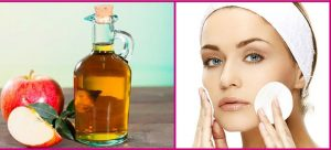 Apple Cider Vinegar For Acne Treatment - 15 Effective Home Remedies For Acne Scars Overnight