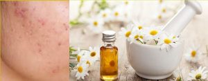 Chamomile Oil For Pimples