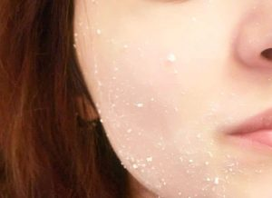 Cocoa Butter For Acne Scars - 15 Effective Home Remedies For Acne Scars Overnight