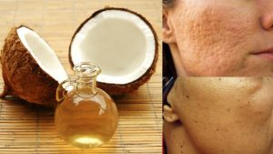 Coconut Oil - coconut oil on skin