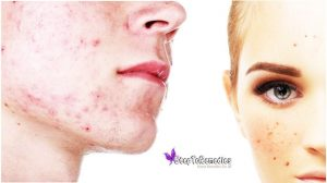 Helpful Tips Against Acne - Home Remedies For Acne Scars Overnight