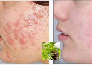 Tea Tree Oil For Acne Treatment - Home Remedies For Acne Scars Overnight