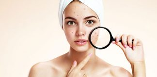 15 Effective Home Remedies For Acne Scars Overnight