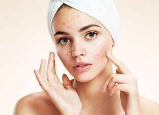 DIY face mask for pimples