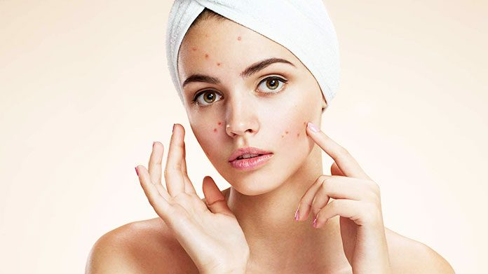 DIY face mask for pimples