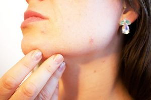 naturopathic acne treatment