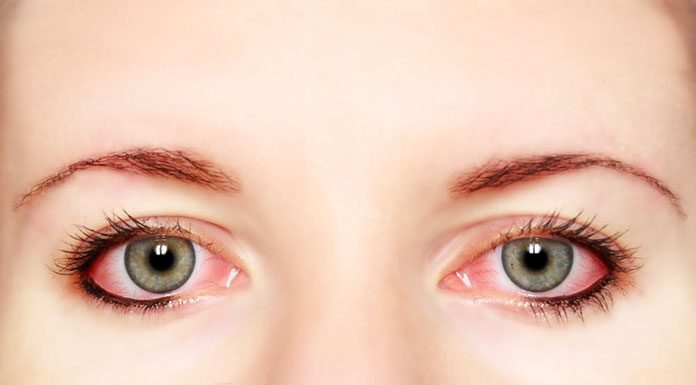 6 Fantabulous Natural Remedies for Red Eyes and Itching
