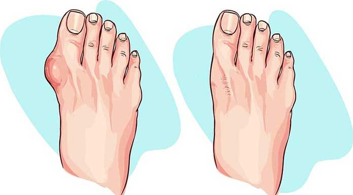 Best Essential Oils For Bunions - Home Remedy For Bunions