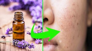 Peeling with essential oils for problem skin