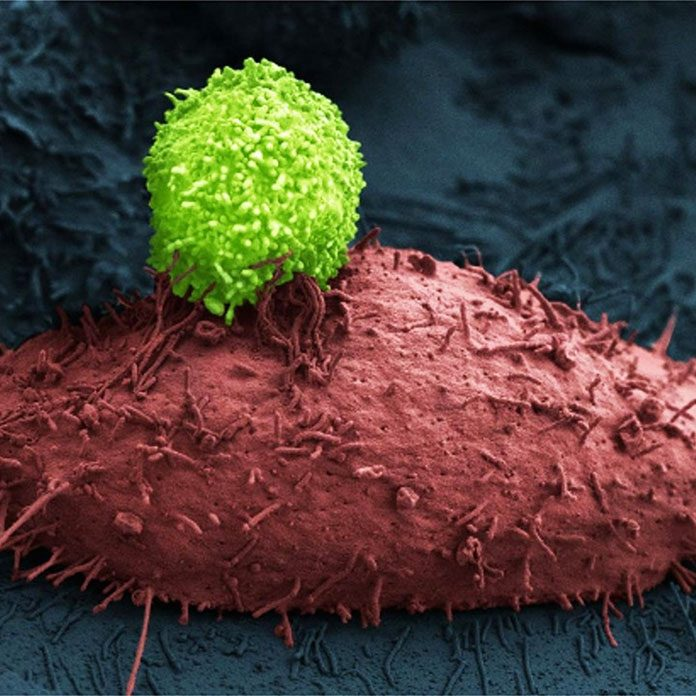 miracle food that kills cancer cells