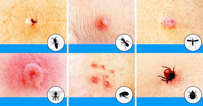 How To Get Rid Of Insect Bites