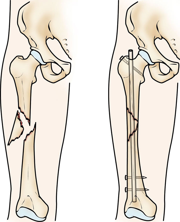 bones of the leg and hip