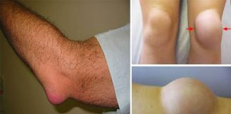 15 Ways How To Get Rid Of Bursitis