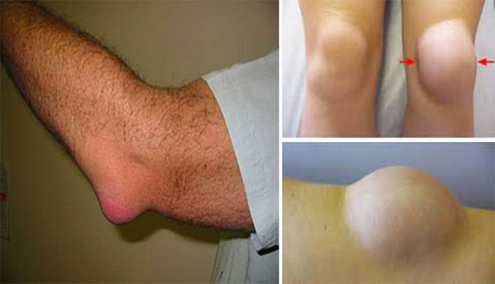 15 Ways How To Get Rid Of Bursitis